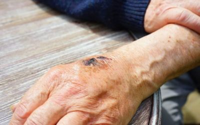 Secondary intention: Types of wound healing