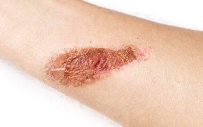 Moisture-Associated Skin Damage (MASD)