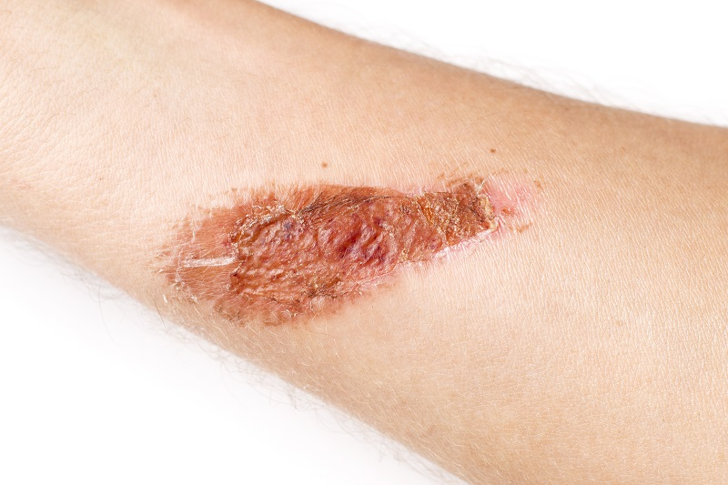 Skin damage caused by prolonged exposure to moisture (MASD)