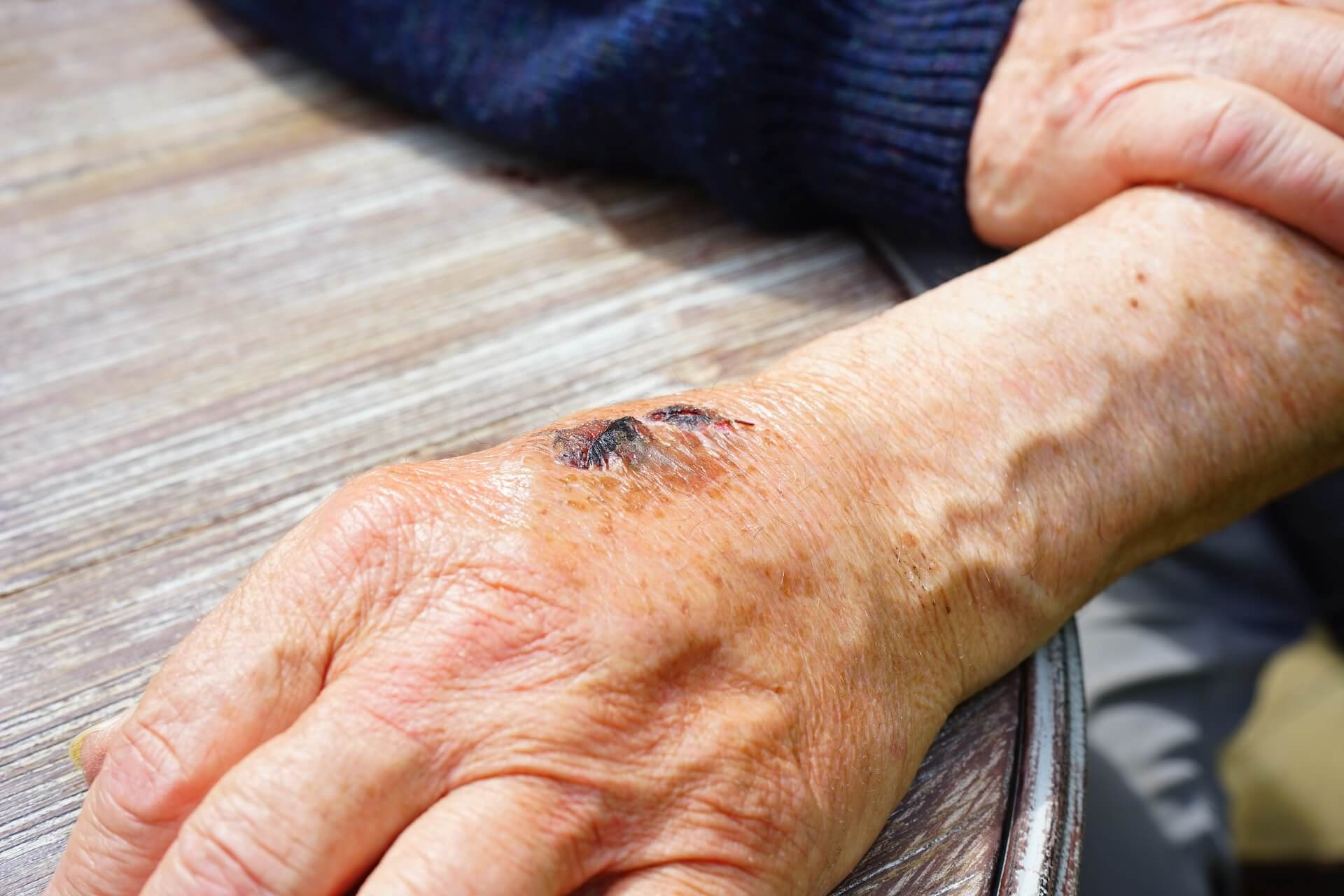 Egy nem gyógyuló a seb valószínűleg el van fertőződve