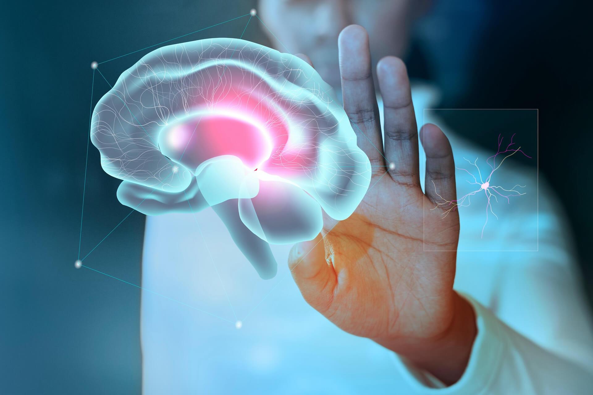 A sztrók az agy vérellátásának zavara.